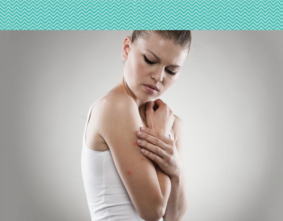 Quais os cuidados devemos tomar para a acne solar