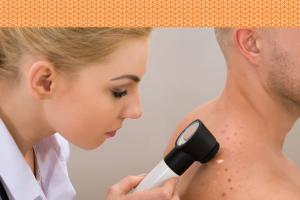 dermaweb-dermatologia-xeroderma-pigmentoso-tratamento