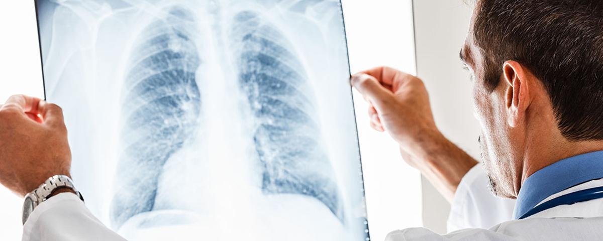 Pneumonia cuidados