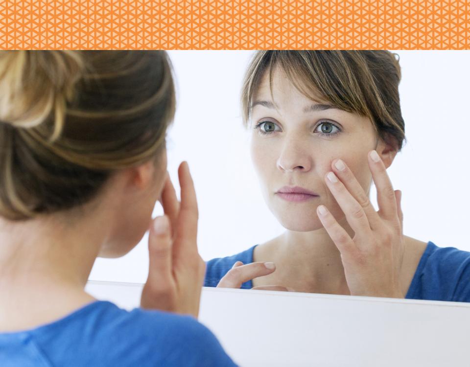 evitando acne no verão